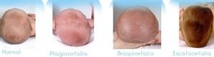 tipos de deformidades cranianas